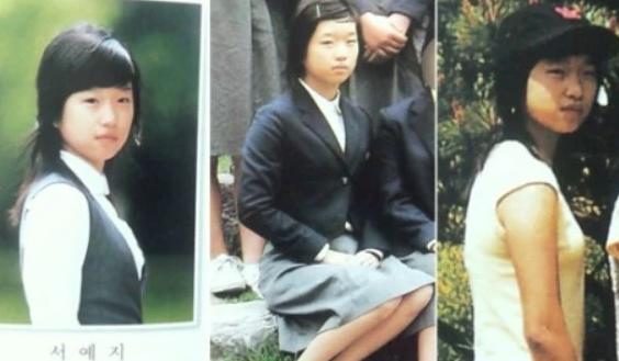 Did Seo Ye Ji get plastic surgery?